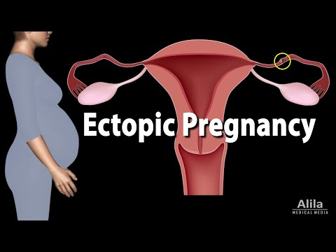 Ectopic Pregnancy, Animation
