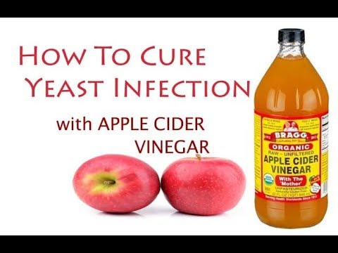 Apple Cider Vinegar for Yeast Infection Natural Treatment - yeast infection - home remedies