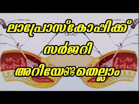 ലാപ്രോസ്കോപ്പിക് സർജറി അറിയേണ്ടതെല്ലാം   Malayalam Health Tips   Dr  Mareena   Arogyavicharam