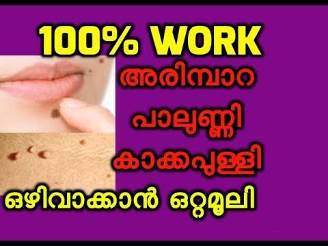 അരിമ്പാറയും കാക്കപുള്ളിയും അകറ്റാൻ ഒറ്റമൂലി 100% Working How to Remove Moles and Warts