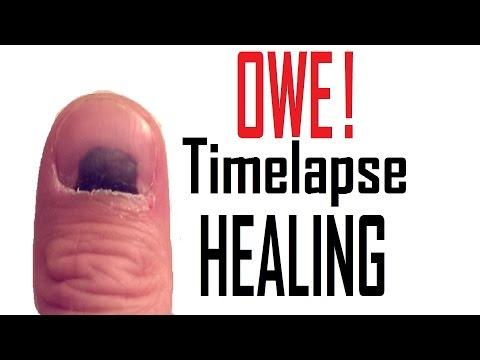 Smashed Thumb Nail Healing Timelapse