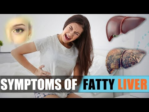 Signs of fatty Liver disease - Most common warning symptoms of fatty liver