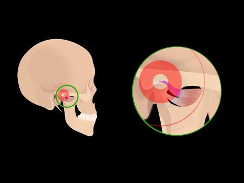 Ear Pain Due to TMJ (Jaw Joint) Disorders