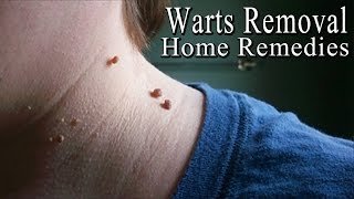 Warts - 5 Simple Home Remedies to Get Rid of Facial Warts Naturally |
