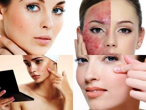HOW TO REMOVE PIMPLES OVERNIGHT or SKINCARE ROUTINE FOR ACNE PRONE SKIN
