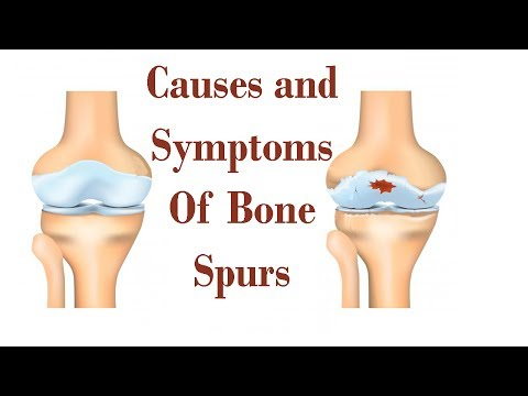 Causes And Symptoms Of Bone Spurs That Make It Serious