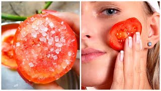Rub Tomato On Your Face And Get Rid Of Acne, Blackheads and Dark Spots