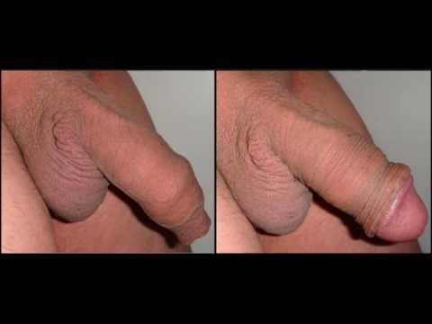 Consider, that Penis anatomy nude