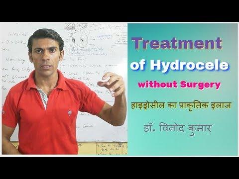 Treatment of Hydrocele without Surgery | Hindi