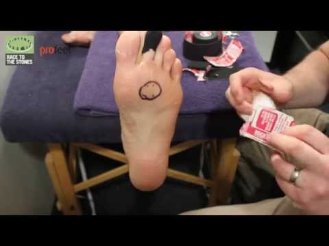 Profeet forefoot blister