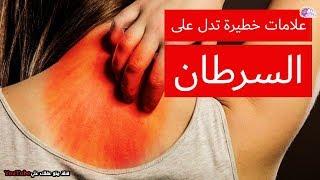 #x202b;الأطباء يحذرونك | علامات احترس منها تشير إلى أن السرطان بدء داخل جسدك !#x202c;lrm;