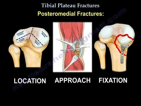 Tibial Plateau Fractures - Everything You Need To Know - Dr. Nabil Ebraheim