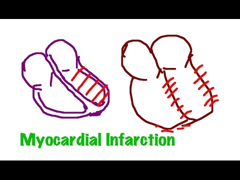 EKG/ECG made simple & easy: Find the Location of Myocardial Infarction