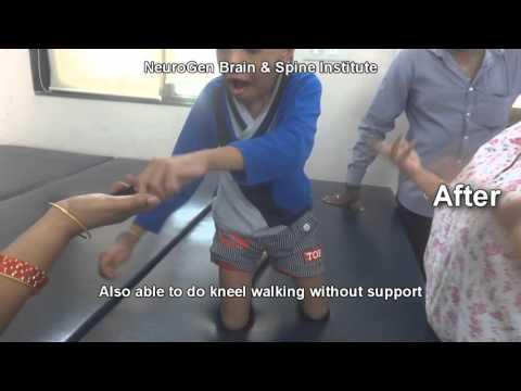 Cerebral Palsy Treatment | Quick Look