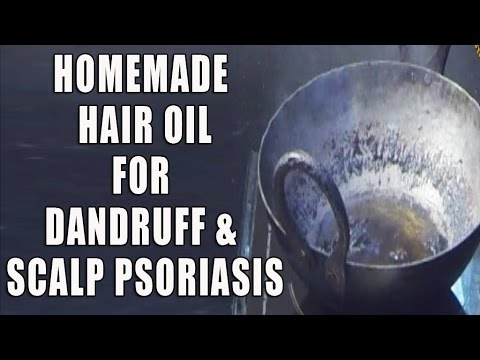 Home Made Hair Oil For Dandruff & Scalp Psoriasis II रूसी के लिए घर का बना तेल  II