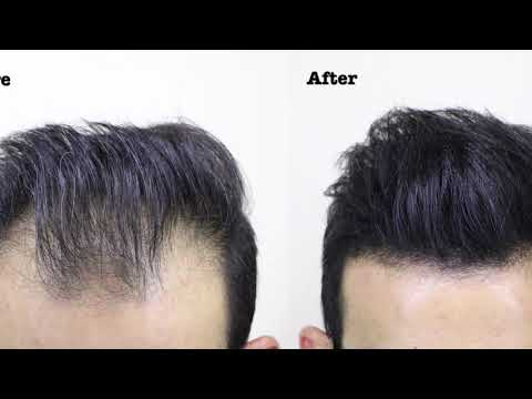Conceal Thinning Hair with Thick Fiber- Hair Building Fibers