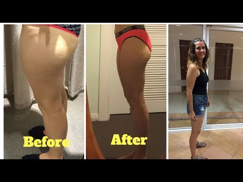 How To lose weight on your legs