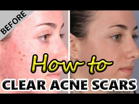 Top 5 Ways on How to Clear Acne Scars