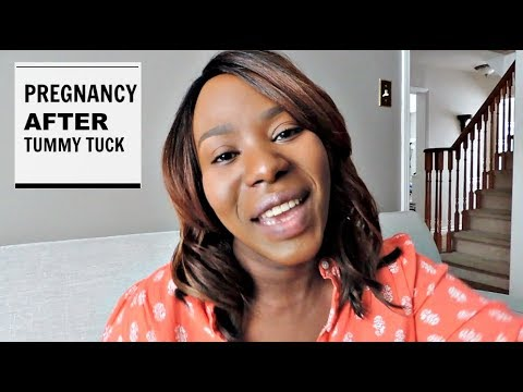 Pregnancy After TUMMY TUCK | My Story & Experience