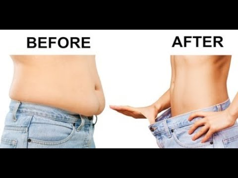 HOW TO GET RID OF BELLY FAT   NO DIET NO EXERCISE   AYURVEDIC REMEDY