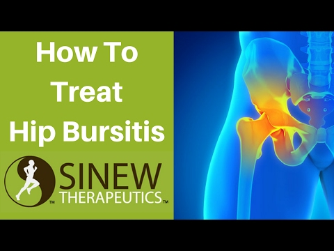 How To Treat Hip Bursitis and Speed Recovery