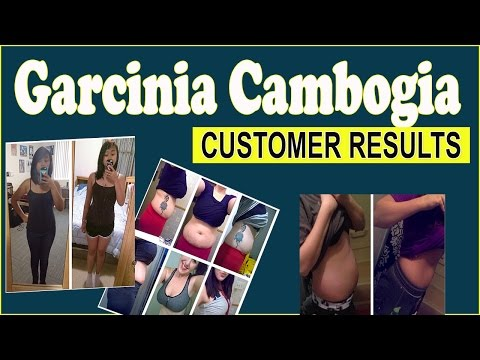 Garcinia Cambogia Results AMAZING Before And After Results Of Real Users PT1