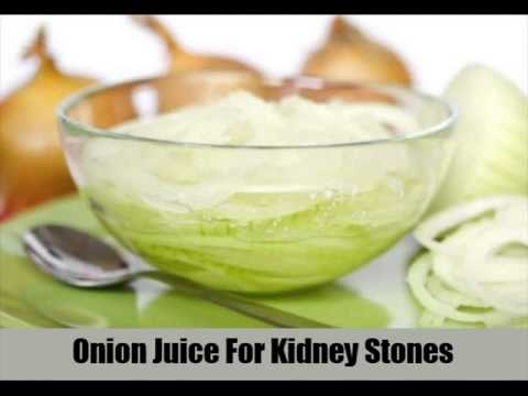 8 Ways To Cure Kidney Stones