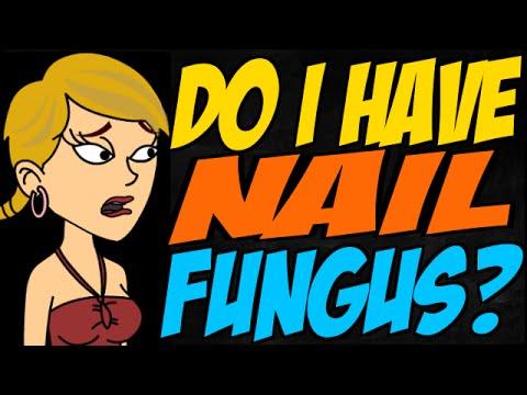 Do I Have Nail Fungus?