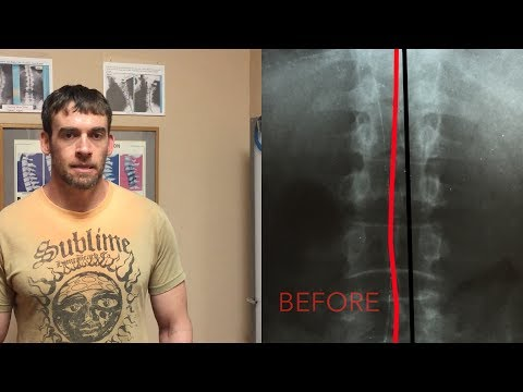 Proof you can fix Scoliosis