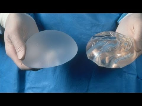 Breast implants and cancer What is the connection ??