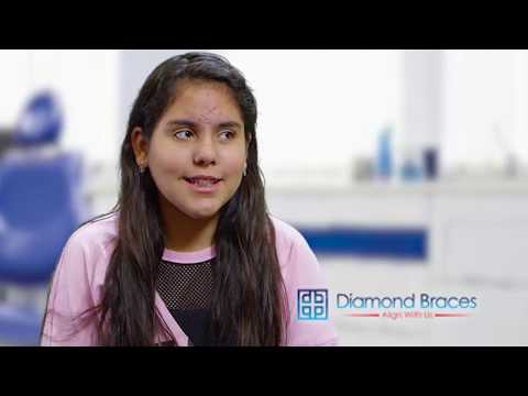 Annalee is a real Diamond Braces client. Listen to what she has to say.