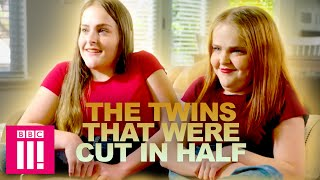 Download The Twins That Were Cut In Half | Living Differently Video