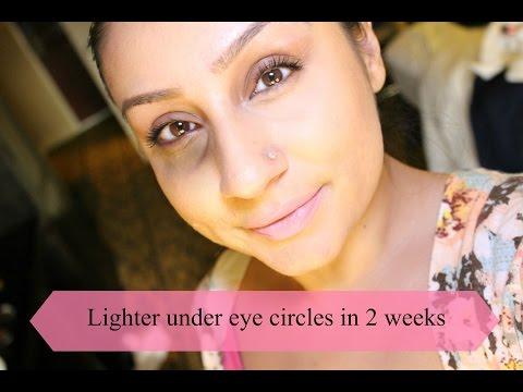 How To Lighten dark circles under eyes in 2 weeks | Makeup With Raji