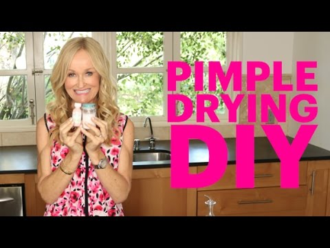 Natural, Healthy Pimple Drying Treatment Recipe | Budget Saving DIY for Acne and Pimples