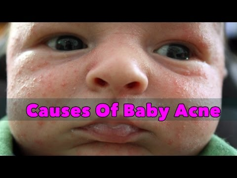 Causes Of Baby Acne- SheCare