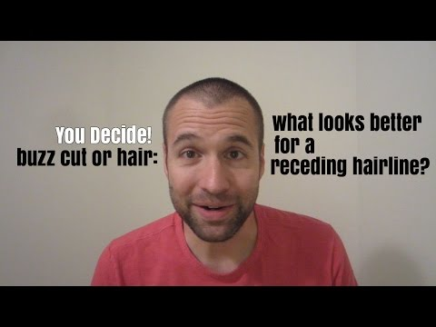Receding Hairline: Buzz Cut or Hair- You Decide Which Looks Better