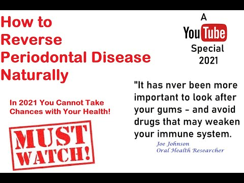 How To Treat Periodontal Disease No Surgery  or Drugs Homeopathic Treatment