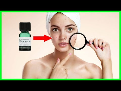 How To Use Tea Tree Oil To Treat Acne Naturally? - Get Rid Of Your Acne Forever!