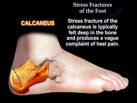 Stress Fractures Of The Foot - Everything You Need To Know - Dr. Nabil Ebraheim