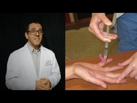 Local Anesthetic Infiltration - everything you need to know