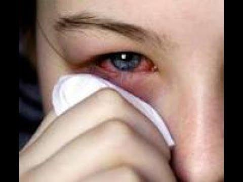 Sore Eyes, Kuliti, Pugita, Dry Eyes, Puwing, Linis sa Mata - ni Doc Yul Dorotheo (Eye Doctor) #2