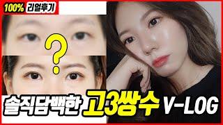 [V-log] 고3학생의 솔직담백한 인생 첫 쌍수후기!!🙂 (수술전 상담~수술 후 3주차 기록 V-log)