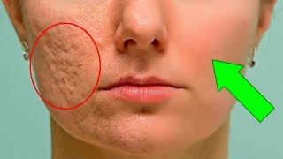 How To Prevent And Fade Acne Scars Fast