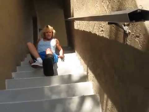 Climb Stairs with  Leg in Cast