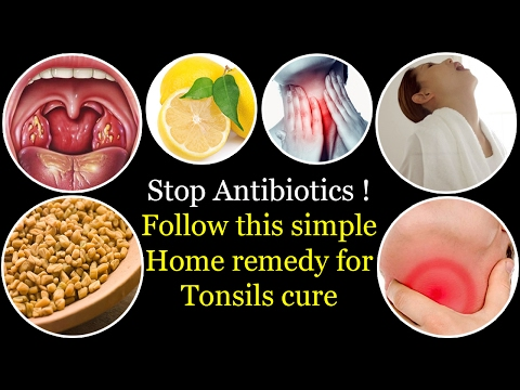 Natural treatment of Tonsils | How to cure tonsillitis without antibiotics | cure tonsils in 4 hours