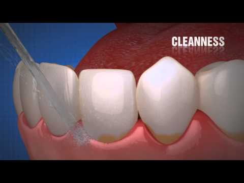 Silon it - Perfect care for implants, teeth and gums