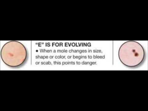 All About Moles