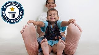 Jeison Rodriguez Hernandez: Largest feet in the world! - Meet The Record Breakers