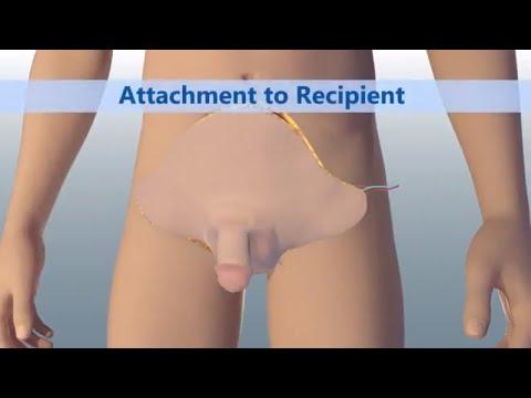 World's First Total Penile and Scrotum Transplant | Johns Hopkins Medicine