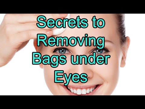 HOW TO - Get rid of Bags under Eyes, Dark Circles, and Puffiness!
